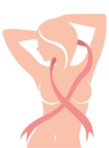 Импланты после кормления грудью