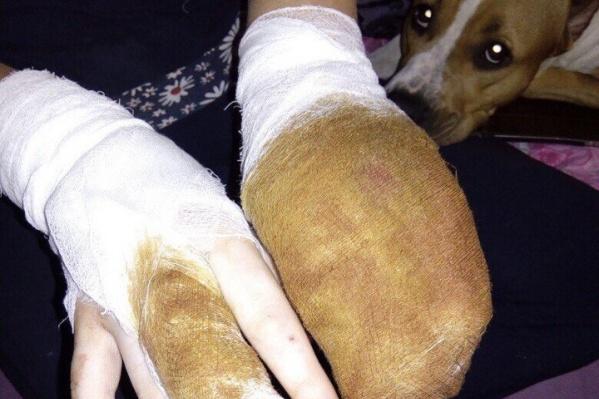 Сообщение о нападении собаки бойцовской породы на жительницу Тюмени поступило в отдел полиции №1
