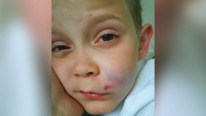 «Я подумал, что меня избили»: школьник из Полетаево на самом деле упал с лестницы