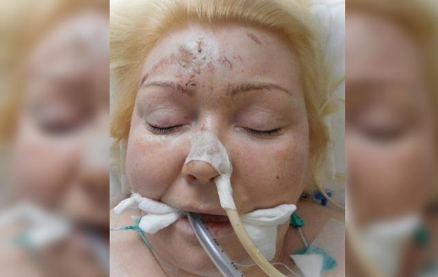 В Перми нашли родственников пострадавшей в аварии женщины