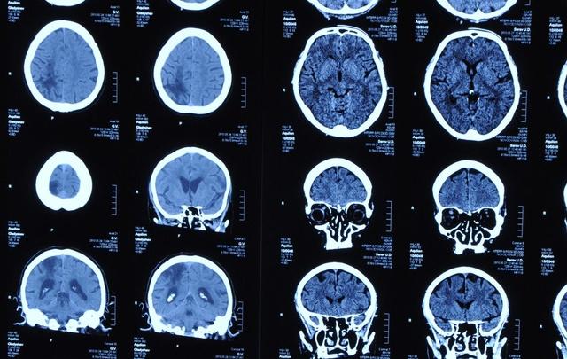 Выгорание на работе можно отследить по активности мозга