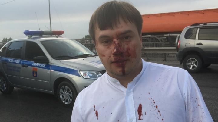 Избитому волгоградскому общественнику Ярославу Князеву сделали ринопластику