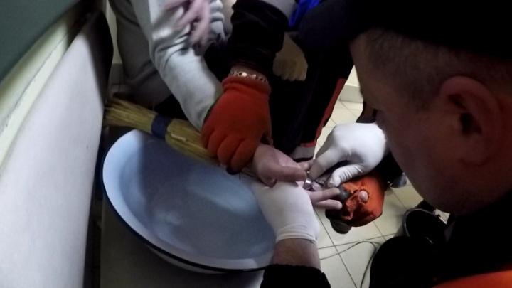 Неудачно окольцован: в Ярославле спасатели болгаркой срезали гайку с пальца мужчины