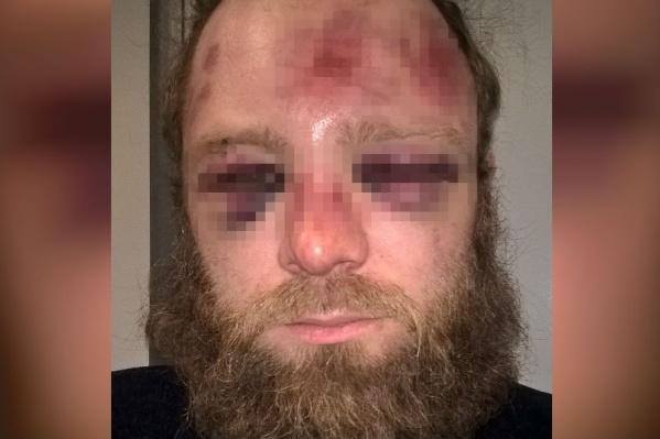После драки Василий оказался в больнице
