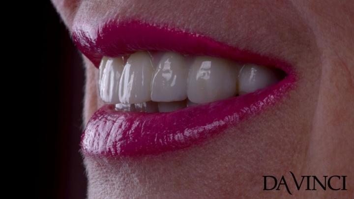 Тотальная реконструкция улыбки за один день: как вернуть потерянные зубы