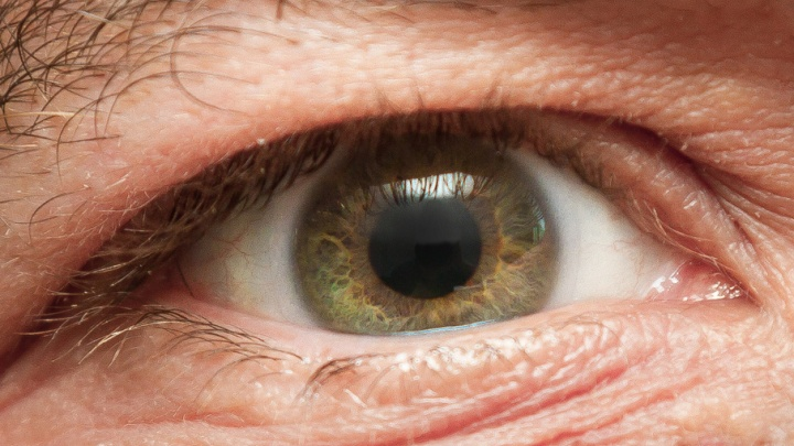 Южноуральцу, потерявшему зрение, первому в России установили бионический глаз