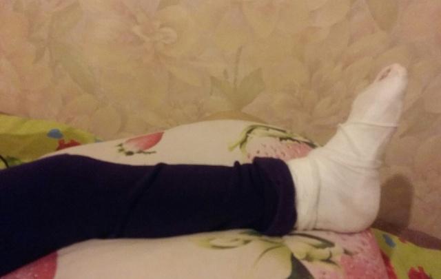 В Самаре в аквапарке школьница сломала палец ноги