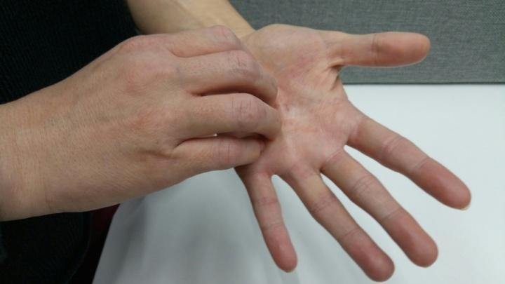 «Чесотка — это всегда вспышка»: врачи отметили рост паразитарного заболевания на Южном Урале
