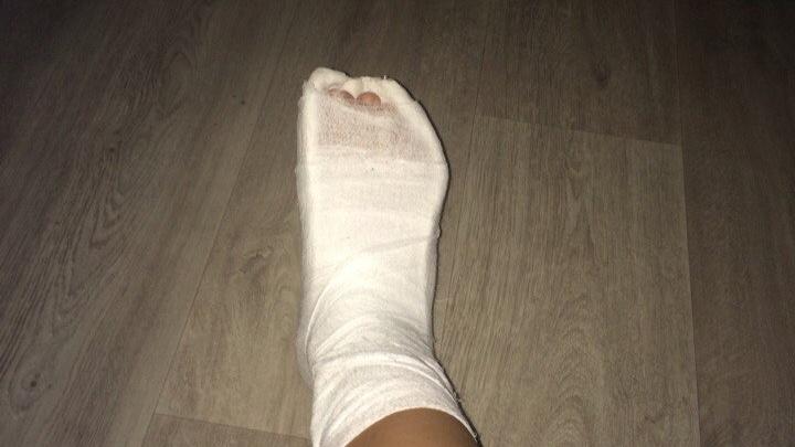 Волгоградка сломала ногу, упав в огромную яму на дороге