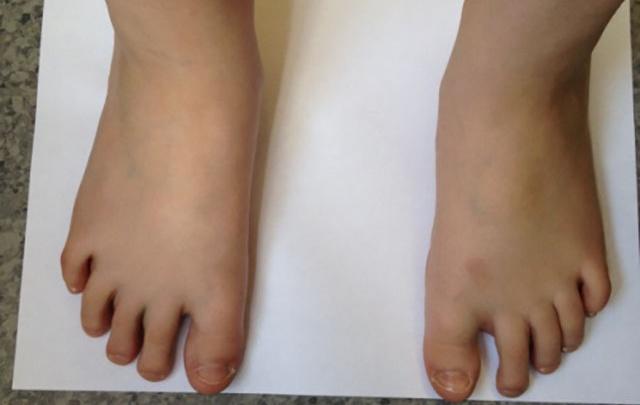 Детская ортопедия: корректируем плосковальгусную деформацию стоп
