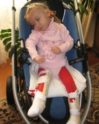 Детская ортопедия: артогрипоз лучше лечить на ранней стадии