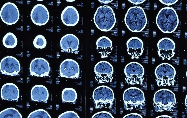 Хронический недосып у подростков ведет к деградации мозга