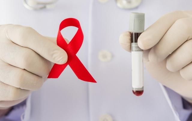 В память жертв СПИДа на Южном Урале посадят деревья