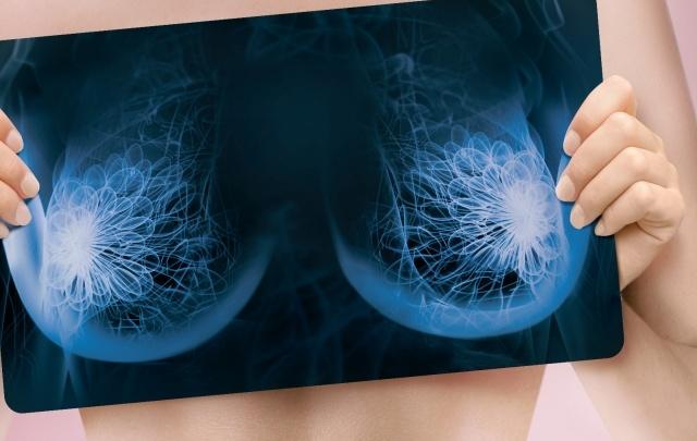 Взглянуть на рак груди без розовых очков