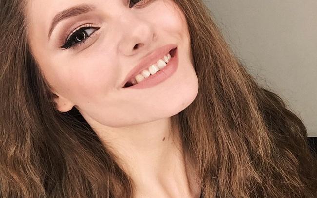 «Улыбайтесь, даже если зубы не совсем ровные»: жительница Тюменской области участвует в конкурсе улыбок