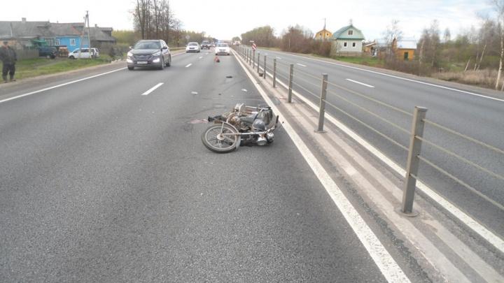 Ярославец на мопеде влетел в дорожное ограждение: мужчину госпитализировали
