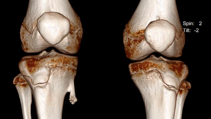 Остеохондромы: самые благоприятные способы лечения новообразований костной ткани у детей