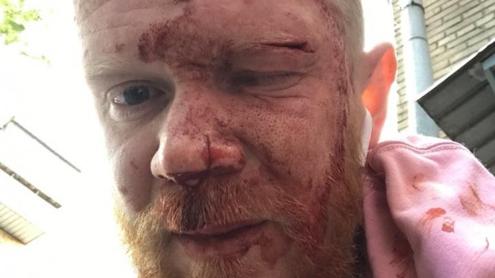 Глаза спасли очки: челябинцу на ЧМЗ разбили бутылку о лицо из-за розовой кофты