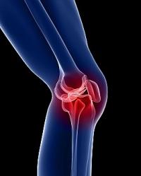 Дорожная больница приглашает ростовчан на профилактику остеопороза