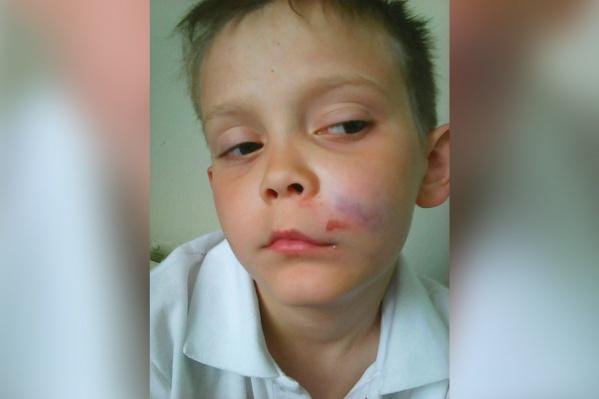 Артем вернулся из школы с разбитым лицом