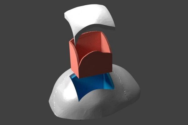 На таком тренажере врачи смогут отрабатывать технику трепанации черепа
