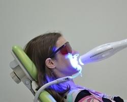 «Валеодент» предлагает отбелить зубы за час со скидкой