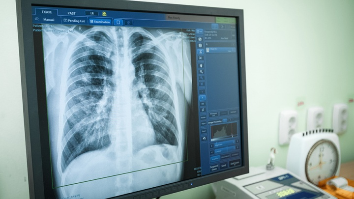 В России будут по-новому диагностировать туберкулез у детей