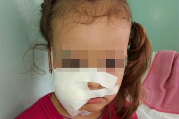 После нападения в детском саду у малышки загноились раны на лице, пришлось лечь в больницу