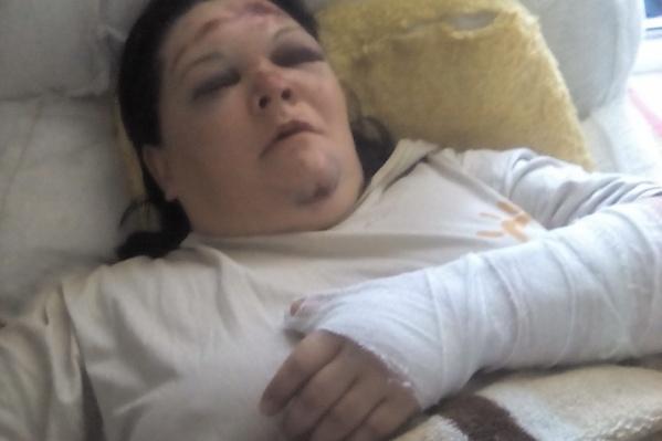 Татьяна попала в больницу с травмами руки и головы