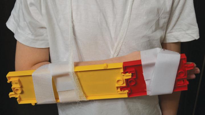 Школьница из Перми изобрела универсальный фиксатор для пострадавших с переломами рук и ног