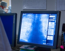 Детская ортопедия: о деформации грудной клетки