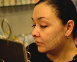«Преображение»: подтяжка лица без операции