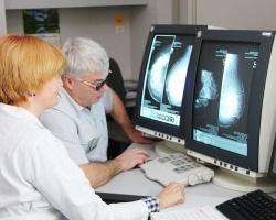 Рак молочной железы: факторы риска и профилактика