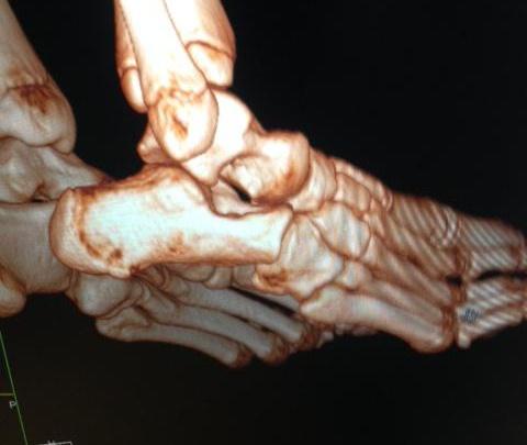 Детская ортопедия: вывихи в суставах стопы