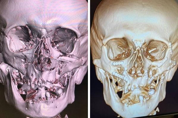На снимке справа видно, как металлоконструкции соединяют части раздробленного лица