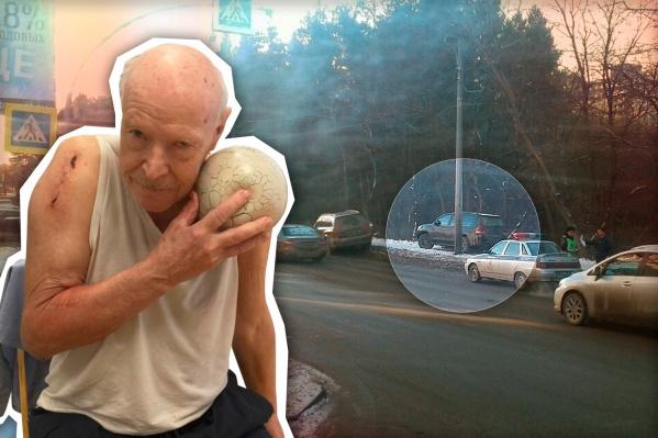 75-летнего пенсионера сбили на пешеходном переходе на улице Лесопарковой. После аварии мужчина не смог до конца восстановить здоровье