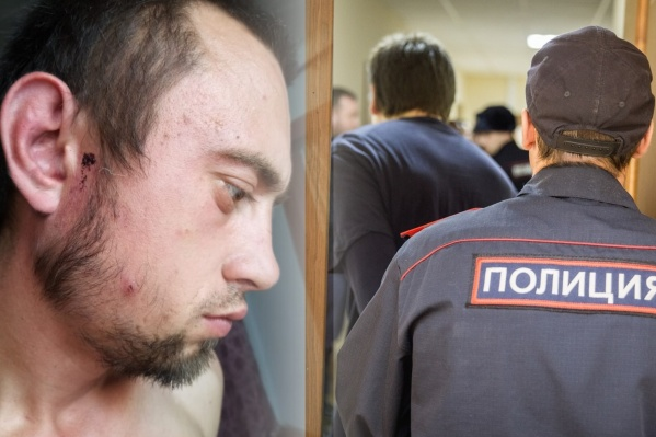 После избиения у мужчины шла кровь из ушей