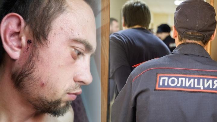 «Били палкой, шваброй, уздой»: новосибирец заявил, что его жестоко избили полицейские