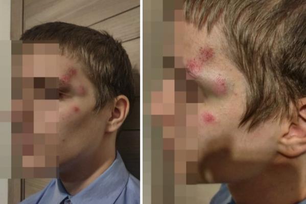 14-летнего подростка избил прохожий 17 февраля 2020 года неподалёку от площади Ленина