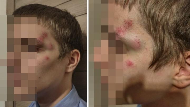 Полиция снова отказалась возбуждать уголовное дело из-за избиения 14-летнего сына новосибирского общественника
