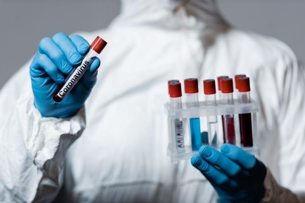 Провериться можно на два вида антител,&nbsp;которые возникают после перенесенной инфекции<br>