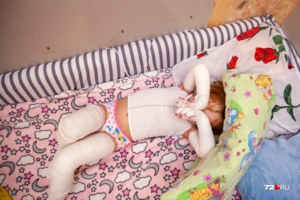 У маленькой Риты из Ишима редкая генетическая болезнь, из-за которой по телу постоянно появляются раны