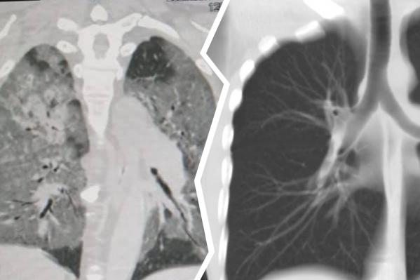 Слева — фото легких больного коронавирусом человека, справа — здорового