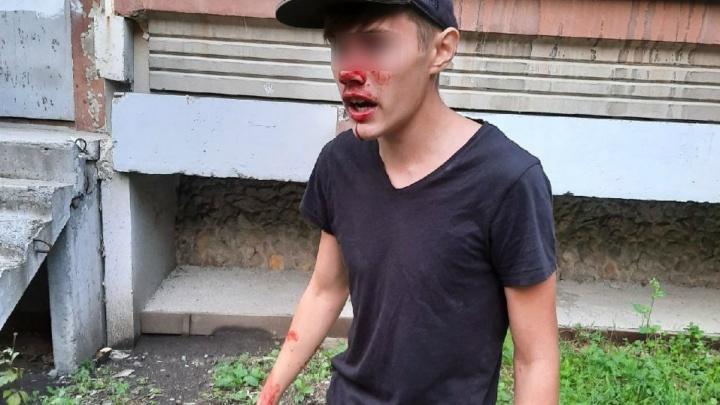 «Дал с ноги мне в лицо»: подросток — о том, как его избил охранник на улице Белинского