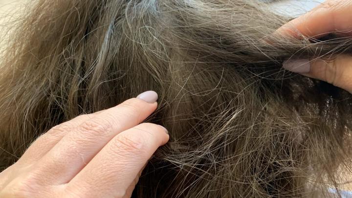 «Вши любят чистые волосы»: в Роспотребнадзоре рассказали, кто чаще всего болеет педикулёзом в Самаре