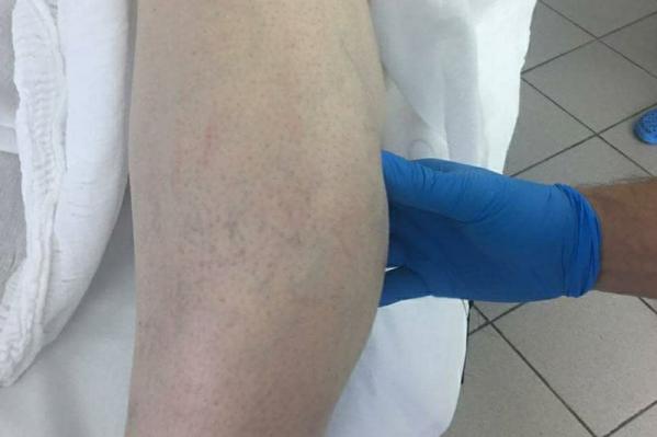 Так выглядела нога мужчины до операции