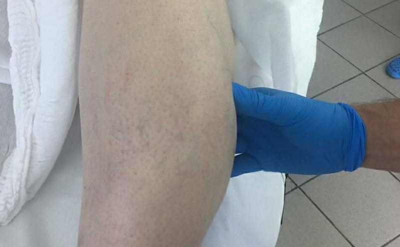 Кузбассовец три года не замечал опухоль в ноге. Врачи удалили большое образование