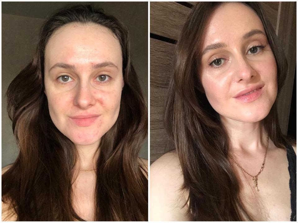 Татьяна говорит, что начала принимать свою внешность только ближе к 30 годам