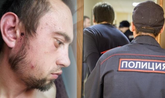 Следователи возбудили уголовное дело после избиения мужчины под Венгерово — он обвиняет полицейских