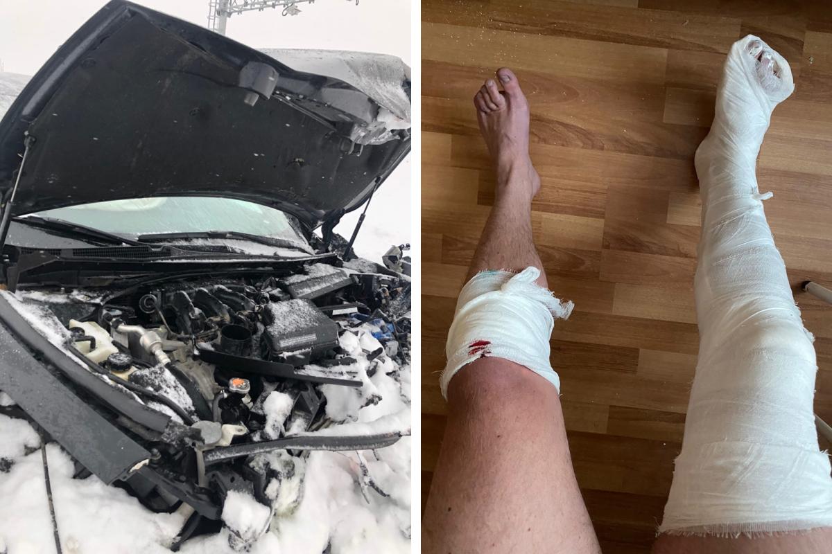 На фото слева то, что осталось отNissan Teana, справа — повреждения, которые получил ее водитель